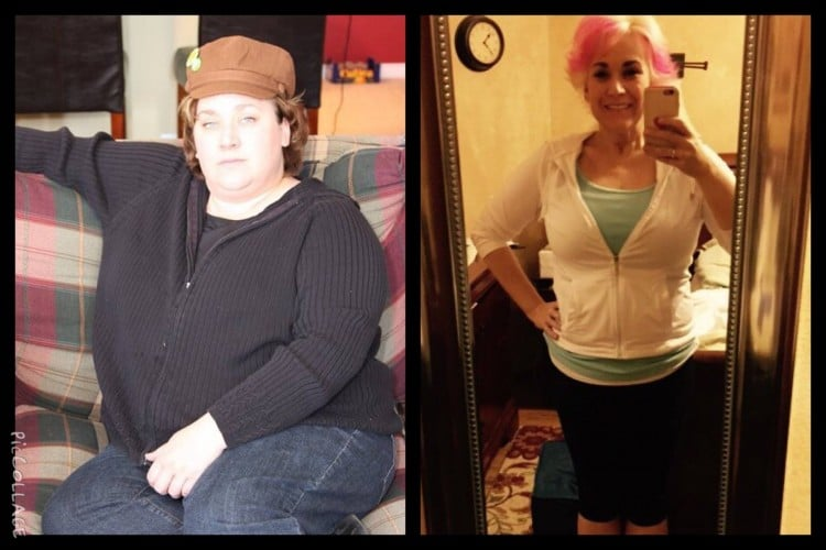 katherine weight loss surgery results